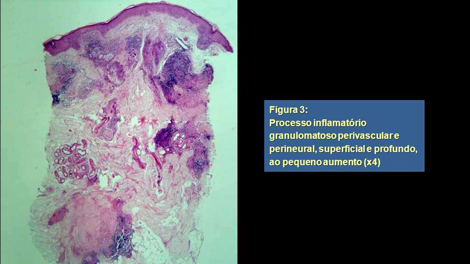 Figura 3: Processo inflamatório granulomatoso perivascular e perineural, superficial e profundo, ao pequeno aumento (x4)
