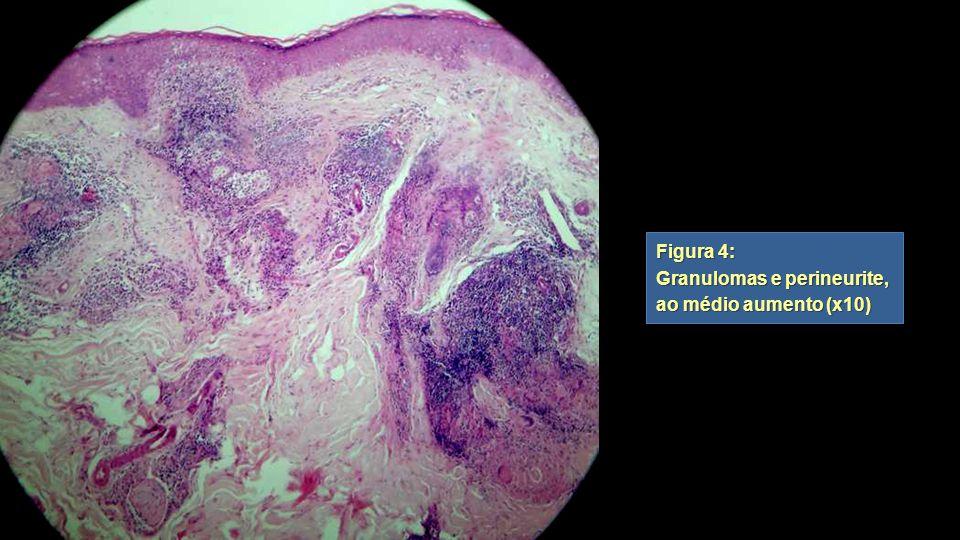 Figura 4: Granulomas e perineurite, ao médio aumento (x10)