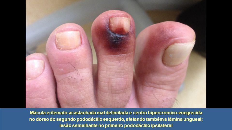 lesão semelhante no primeiro pododáctilo ipsilateral