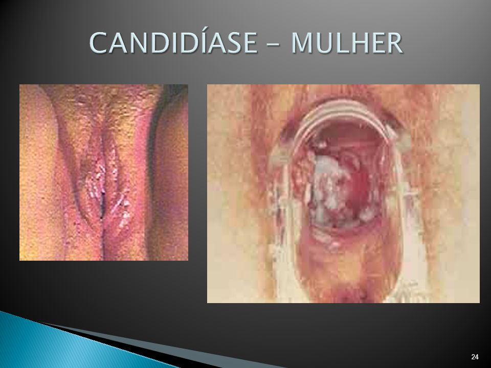 CANDIDÍASE - MULHER