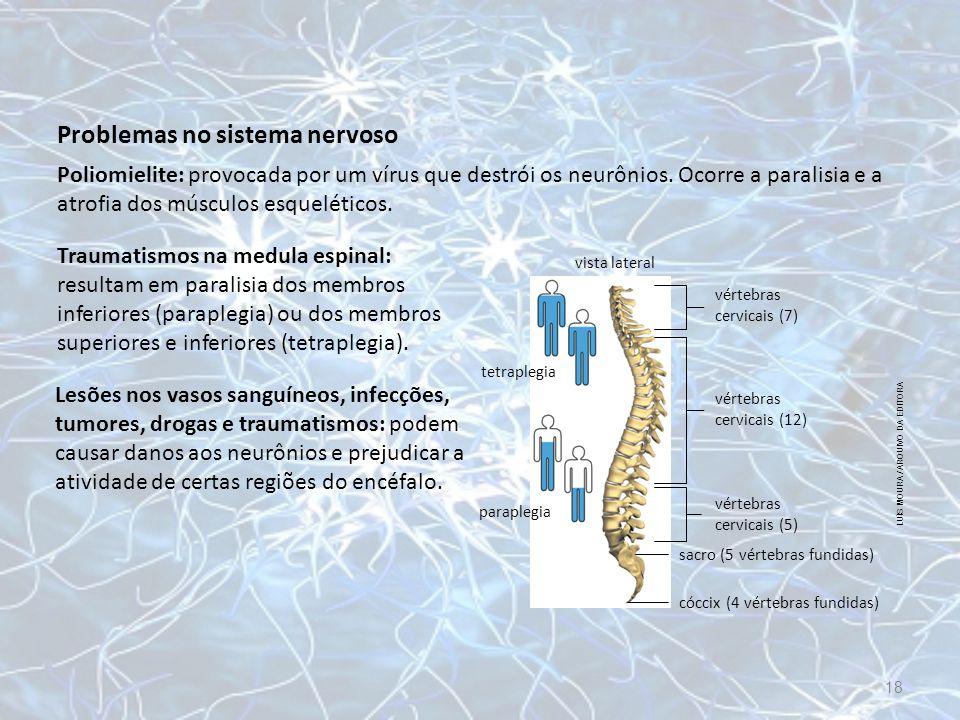 Problemas no sistema nervoso