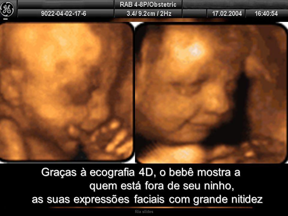 Graças à ecografia 4D, o bebê mostra a. quem está fora de seu ninho,