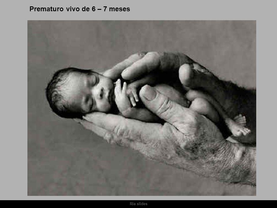 Prematuro vivo de 6 – 7 meses