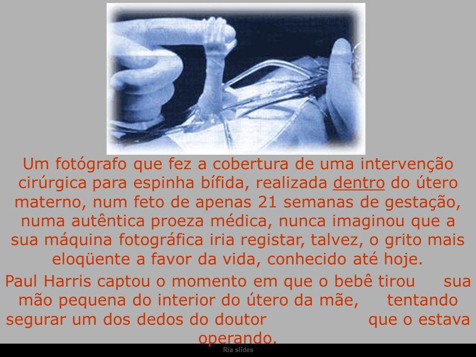 Um fotógrafo que fez a cobertura de uma intervenção cirúrgica para espinha bífida, realizada dentro do útero materno, num feto de apenas 21 semanas de gestação, numa autêntica proeza médica, nunca imaginou que a sua máquina fotográfica iria registar, talvez, o grito mais eloqüente a favor da vida, conhecido até hoje.