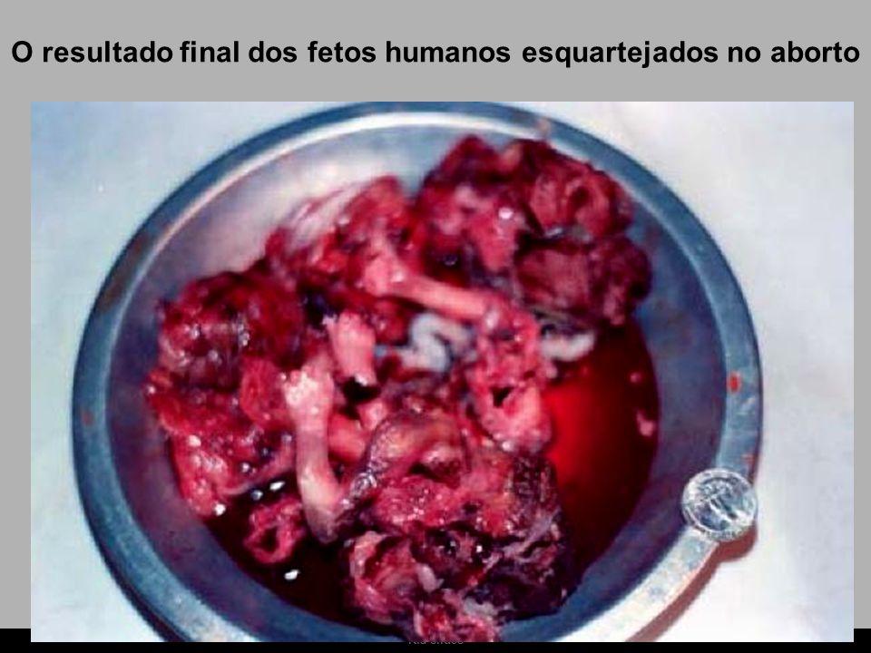 O resultado final dos fetos humanos esquartejados no aborto