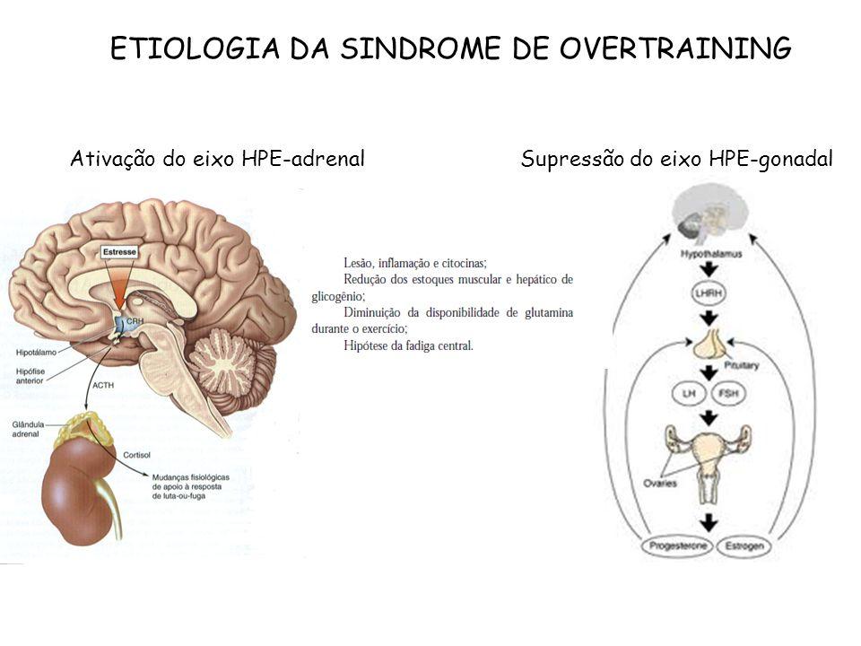 ETIOLOGIA DA SINDROME DE OVERTRAINING