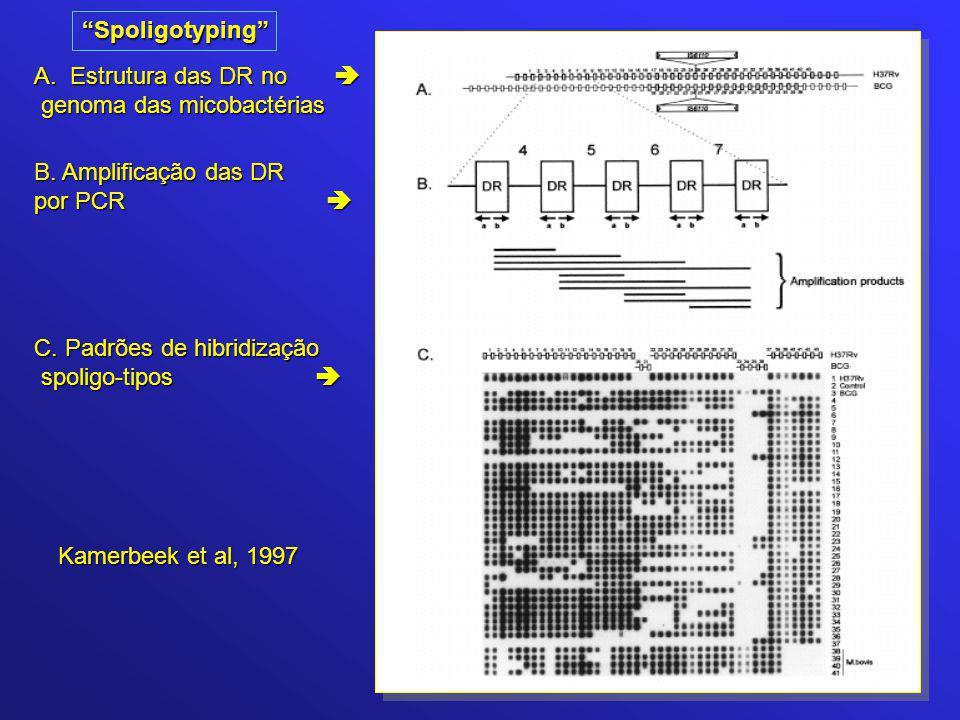 Spoligotyping Estrutura das DR no  genoma das micobactérias. B. Amplificação das DR. por PCR 