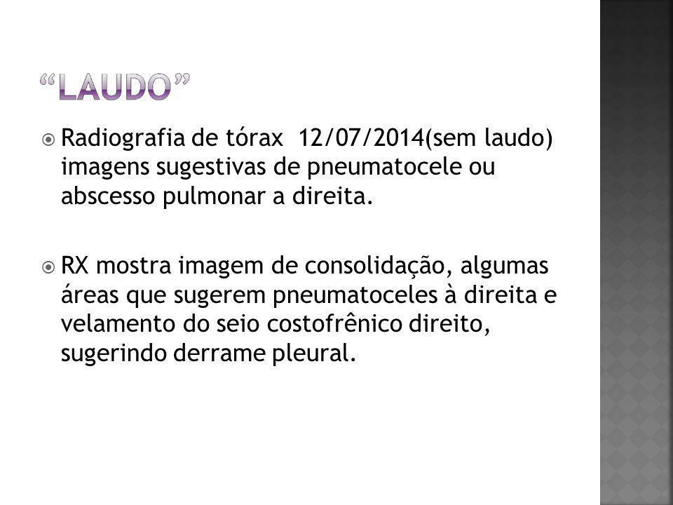 Radiografia de tórax 12/07/2014(sem laudo) imagens sugestivas de pneumatocele ou abscesso pulmonar a direita.