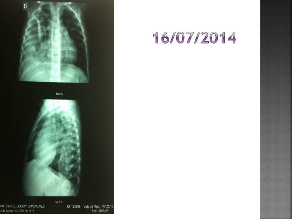 16/07/2014 ATENDIMENTO INI