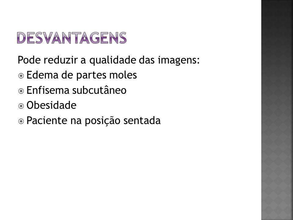desvantagens Pode reduzir a qualidade das imagens: