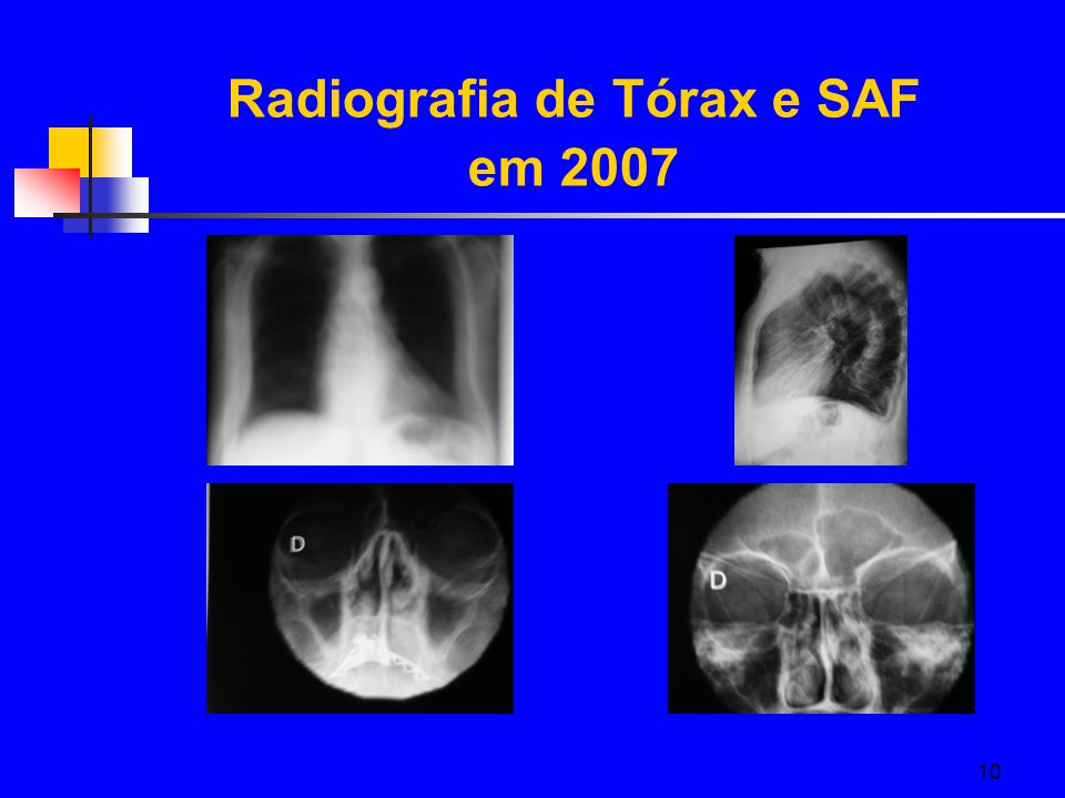 Radiografia de Tórax e SAF em 2007