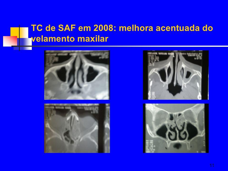 TC de SAF em 2008: melhora acentuada do velamento maxilar
