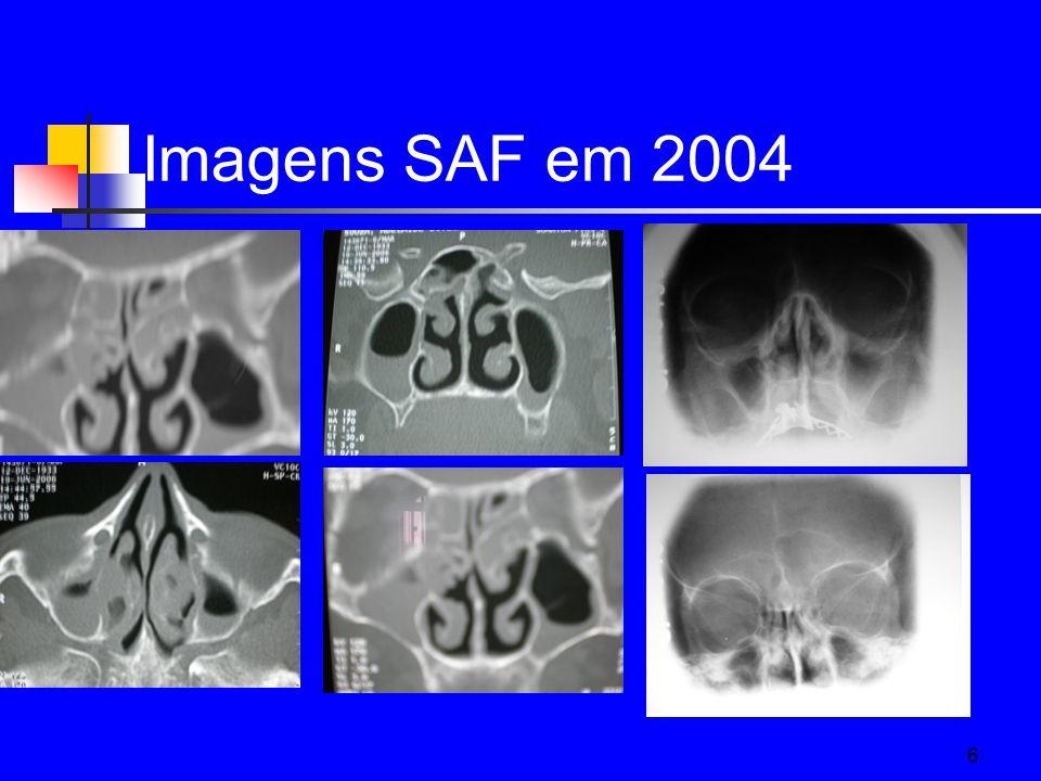 Imagens SAF em 2004