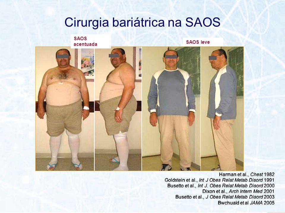 Cirurgia bariátrica na SAOS