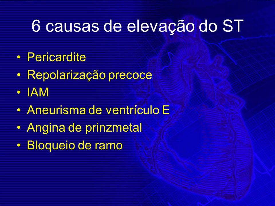 6 causas de elevação do ST
