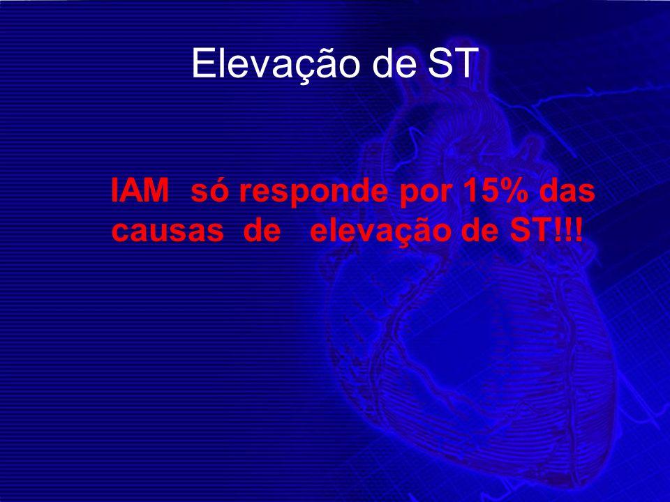IAM só responde por 15% das causas de elevação de ST!!!