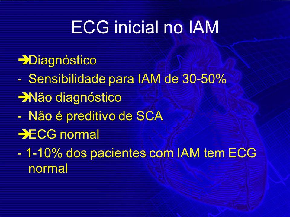 ECG inicial no IAM Diagnóstico Sensibilidade para IAM de 30-50%