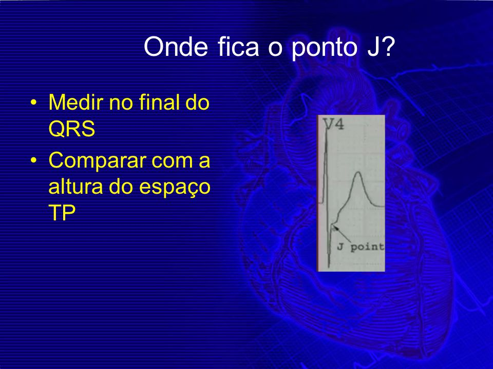 Onde fica o ponto J Medir no final do QRS