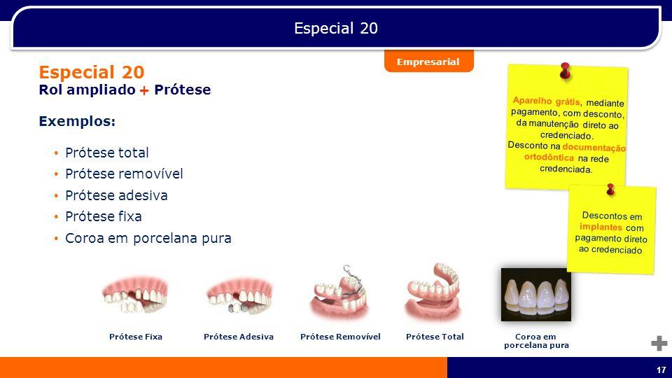 Especial 20 Especial 20 Rol ampliado + Prótese Exemplos: Prótese total