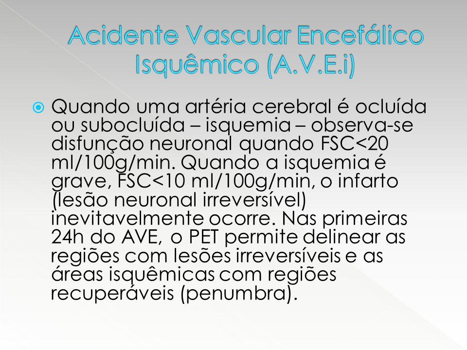 Acidente Vascular Encefálico Isquêmico (A.V.E.i)