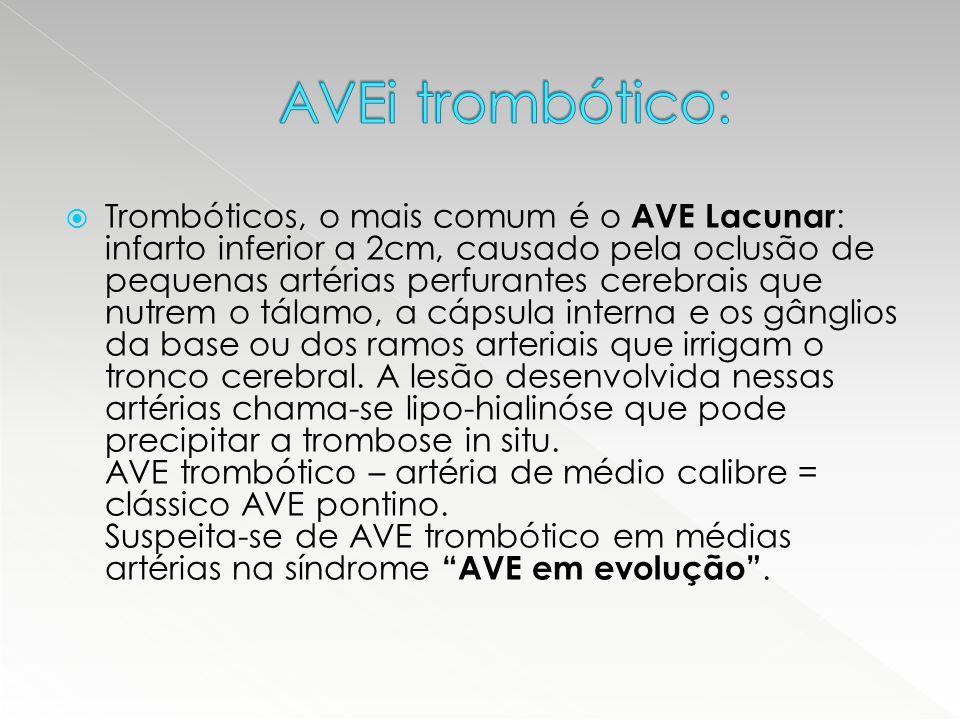 AVEi trombótico: