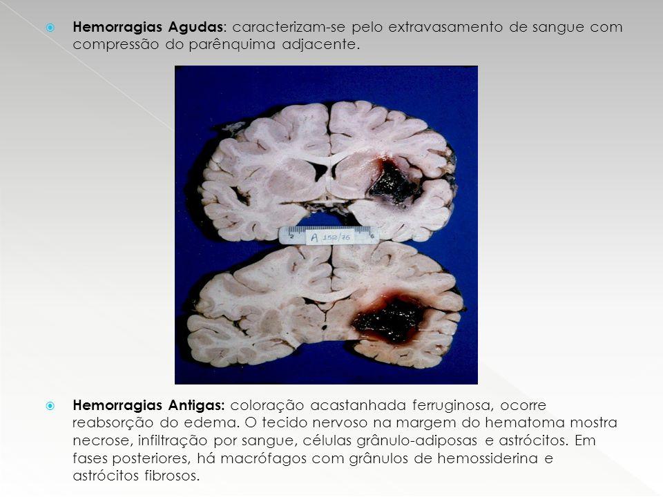 Hemorragias Agudas: caracterizam-se pelo extravasamento de sangue com compressão do parênquima adjacente.