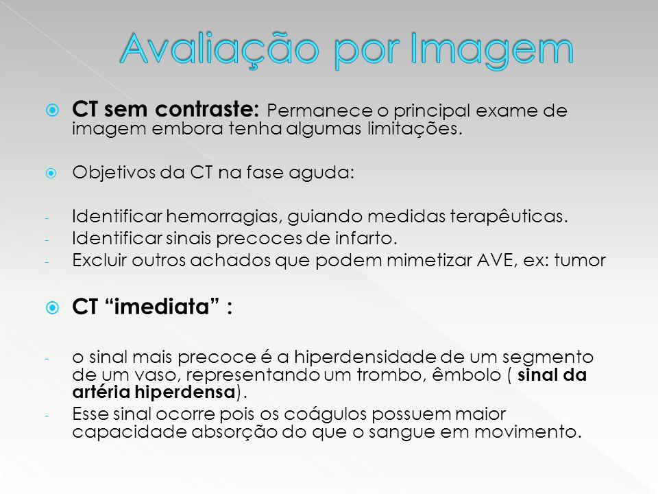 Avaliação por Imagem CT sem contraste: Permanece o principal exame de imagem embora tenha algumas limitações.