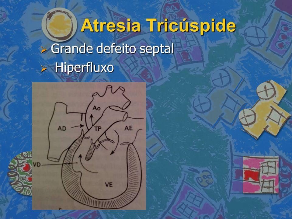 Atresia Tricúspide Grande defeito septal Hiperfluxo