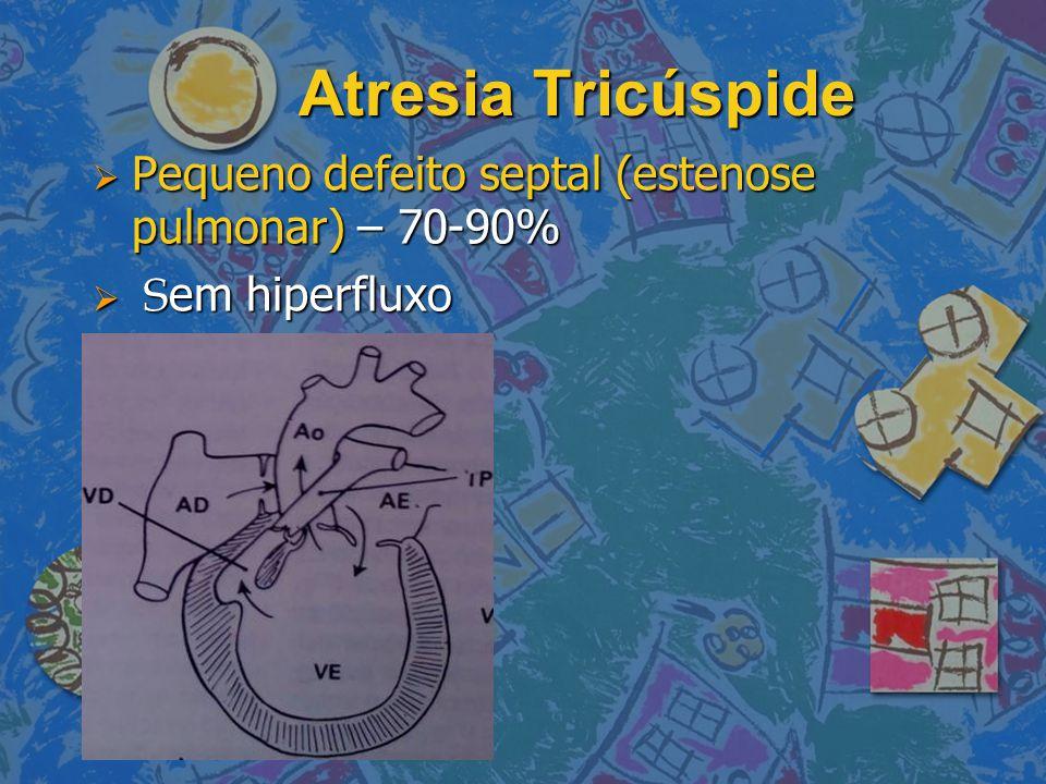 Atresia Tricúspide Pequeno defeito septal (estenose pulmonar) – 70-90%