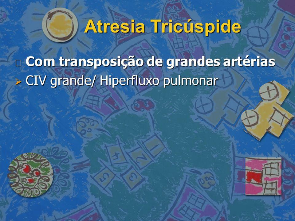Atresia Tricúspide Com transposição de grandes artérias