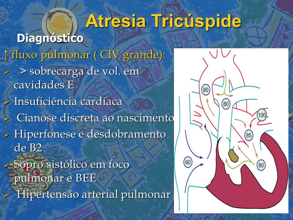 Atresia Tricúspide Diagnóstico ↑ fluxo pulmonar ( CIV grande):