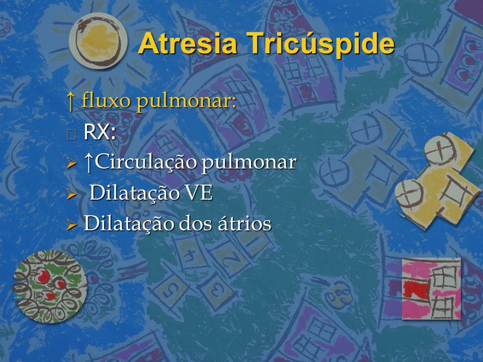 Atresia Tricúspide ↑ fluxo pulmonar: RX: ↑Circulação pulmonar