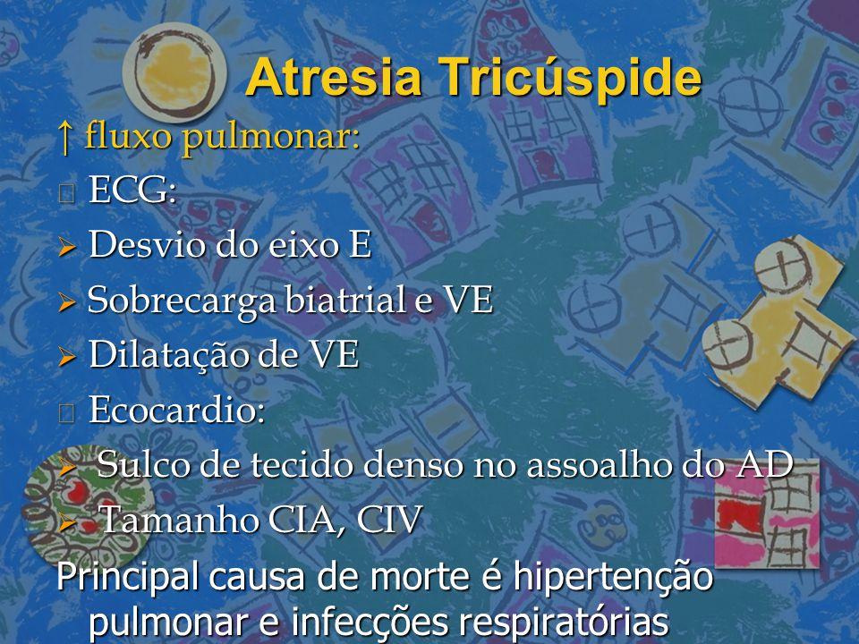 Atresia Tricúspide ↑ fluxo pulmonar: ECG: Desvio do eixo E