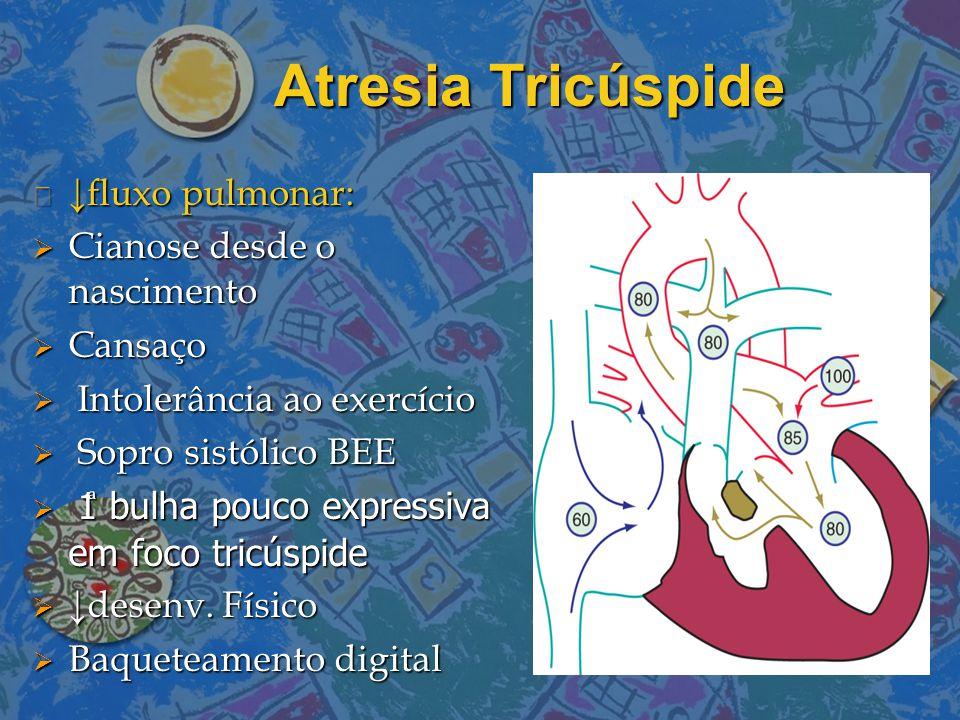 Atresia Tricúspide ↓fluxo pulmonar: Cianose desde o nascimento Cansaço