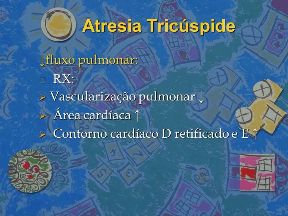 Atresia Tricúspide ↓fluxo pulmonar: RX: Vascularização pulmonar ↓