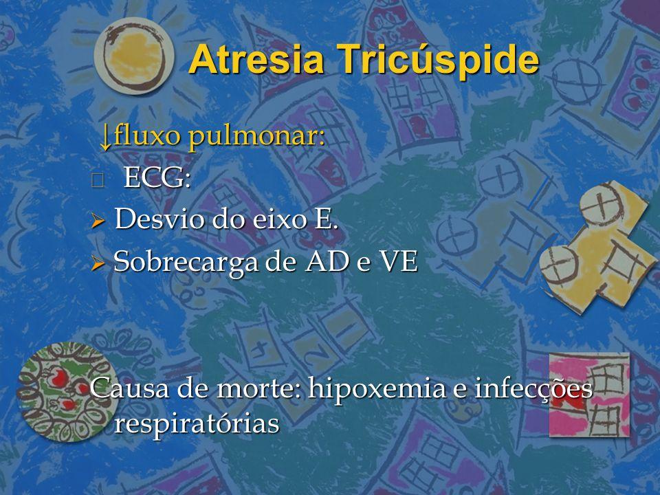 Atresia Tricúspide ↓fluxo pulmonar: ECG: Desvio do eixo E.