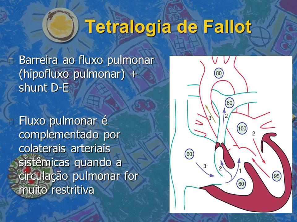 Tetralogia de Fallot Barreira ao fluxo pulmonar (hipofluxo pulmonar) + shunt D-E.