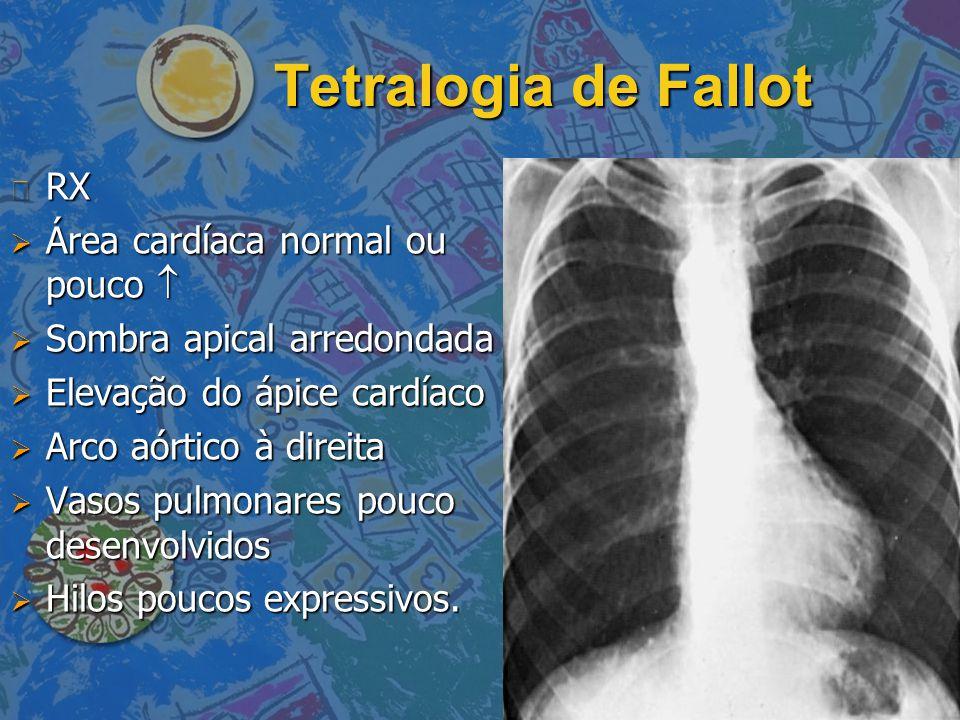 Tetralogia de Fallot RX Área cardíaca normal ou pouco 