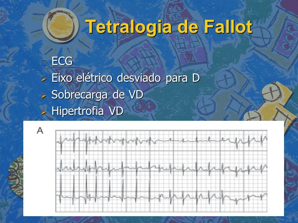 Tetralogia de Fallot ECG Eixo elétrico desviado para D
