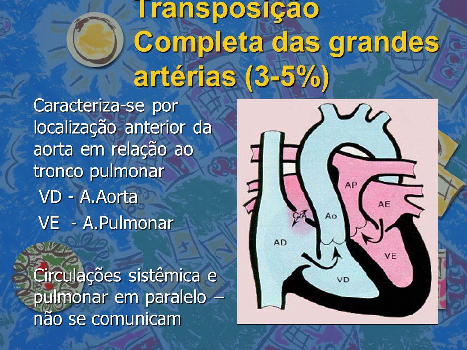 Transposição Completa das grandes artérias (3-5%)