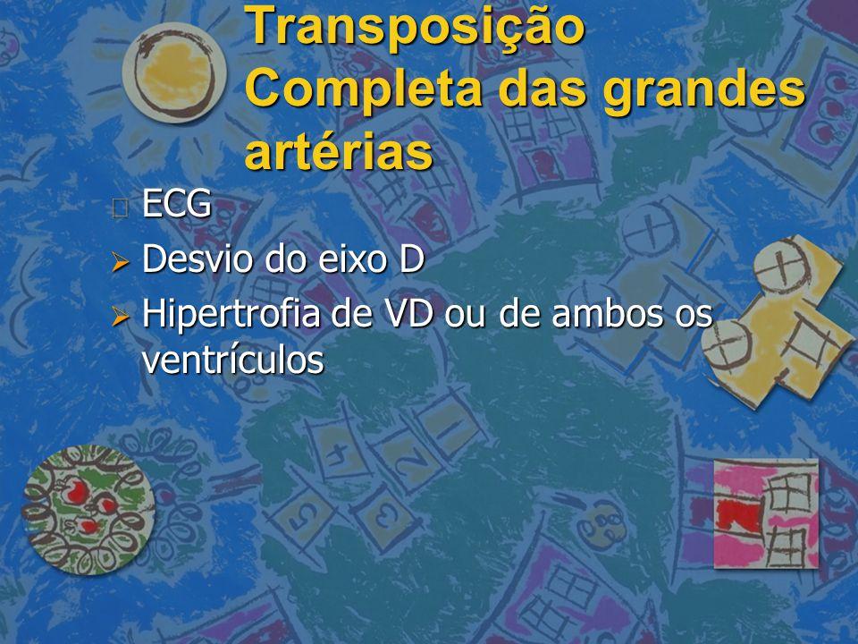 Transposição Completa das grandes artérias
