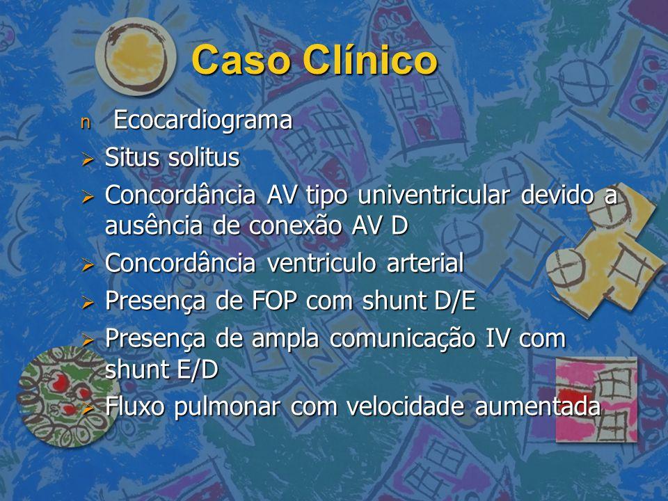 Caso Clínico Ecocardiograma Situs solitus