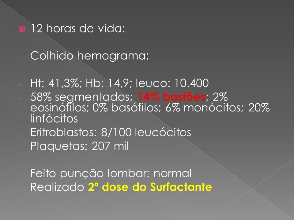 12 horas de vida: Colhido hemograma: Ht: 41,3%; Hb: 14,9; leuco: 10.400.