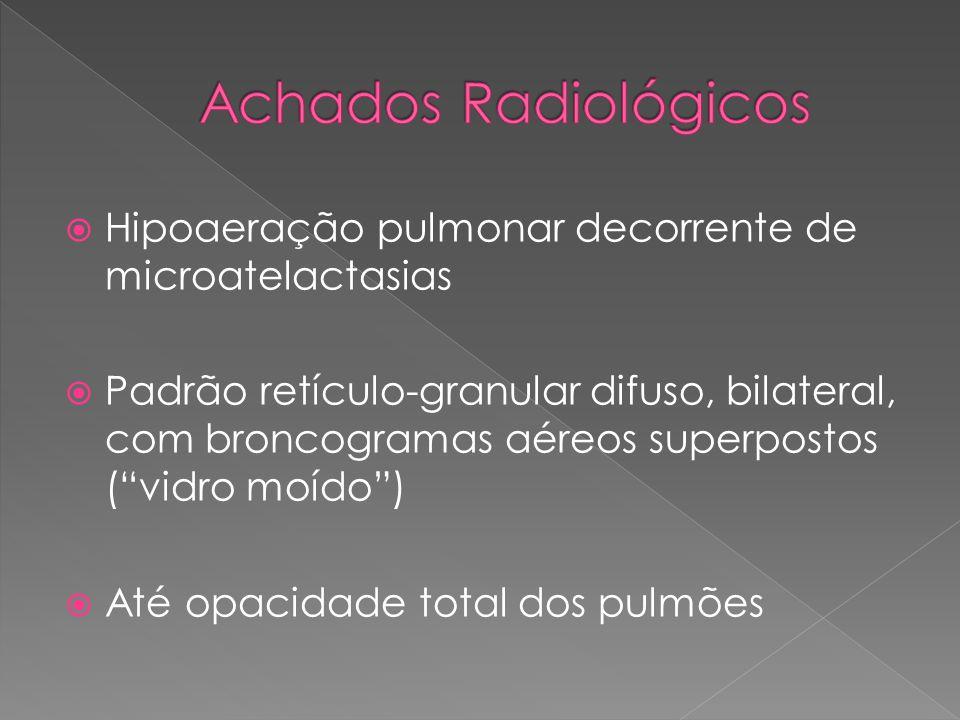 Achados Radiológicos Hipoaeração pulmonar decorrente de microatelactasias.