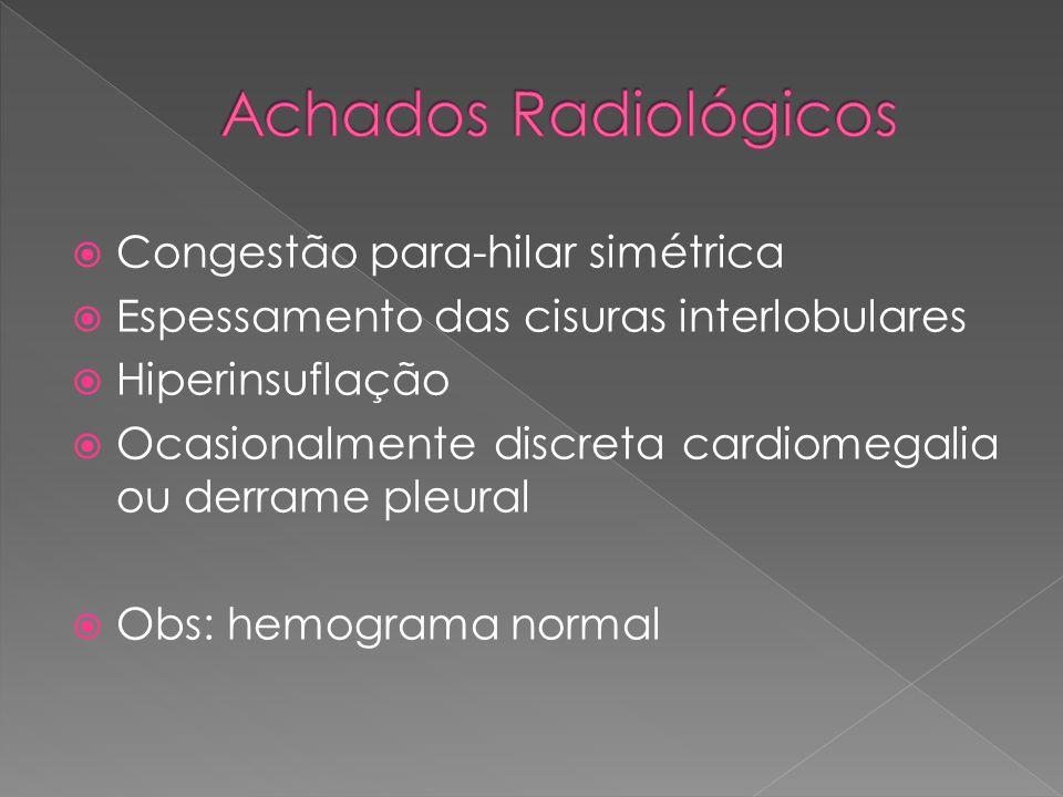 Achados Radiológicos Congestão para-hilar simétrica