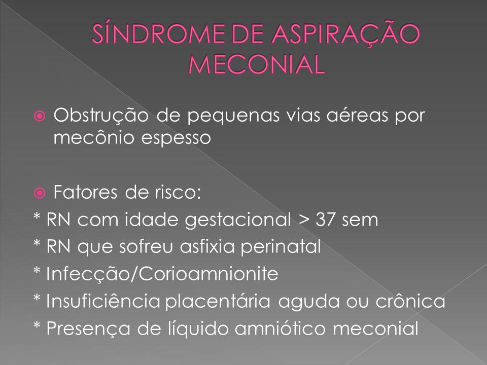 SÍNDROME DE ASPIRAÇÃO MECONIAL