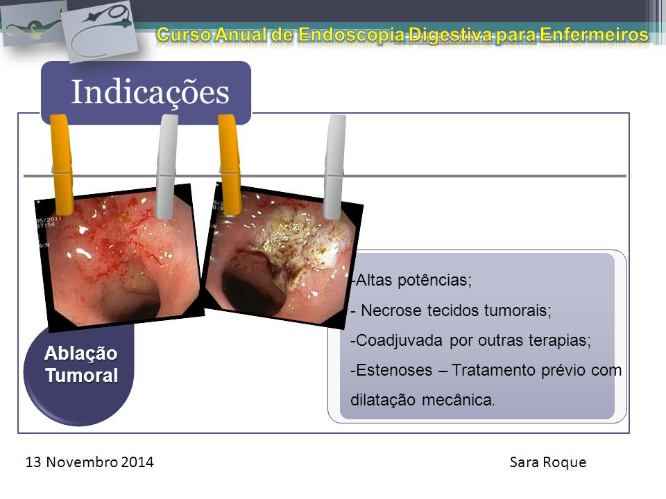 Curso Anual de Endoscopia Digestiva para Enfermeiros