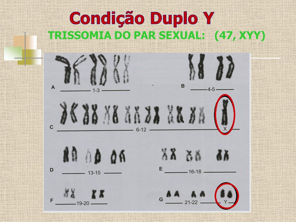 Condição Duplo Y TRISSOMIA DO PAR SEXUAL: (47, XYY)