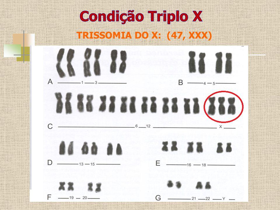 Condição Triplo X TRISSOMIA DO X: (47, XXX)