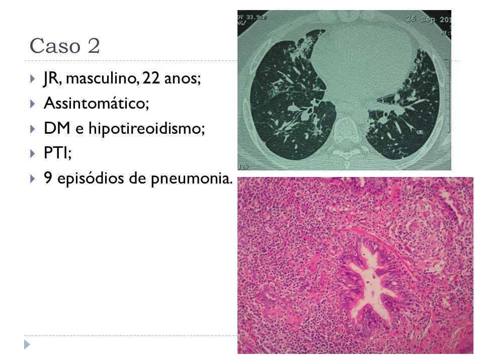 Caso 2 JR, masculino, 22 anos; Assintomático; DM e hipotireoidismo;